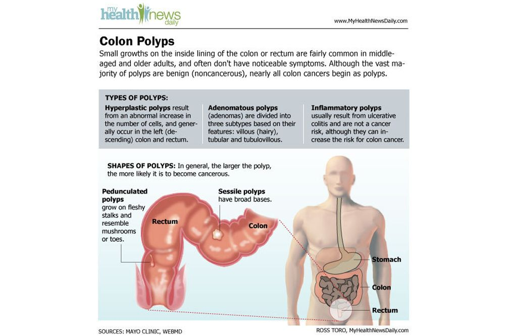 colon cancer: causes, symptoms and treatments | men and women, Human Body
