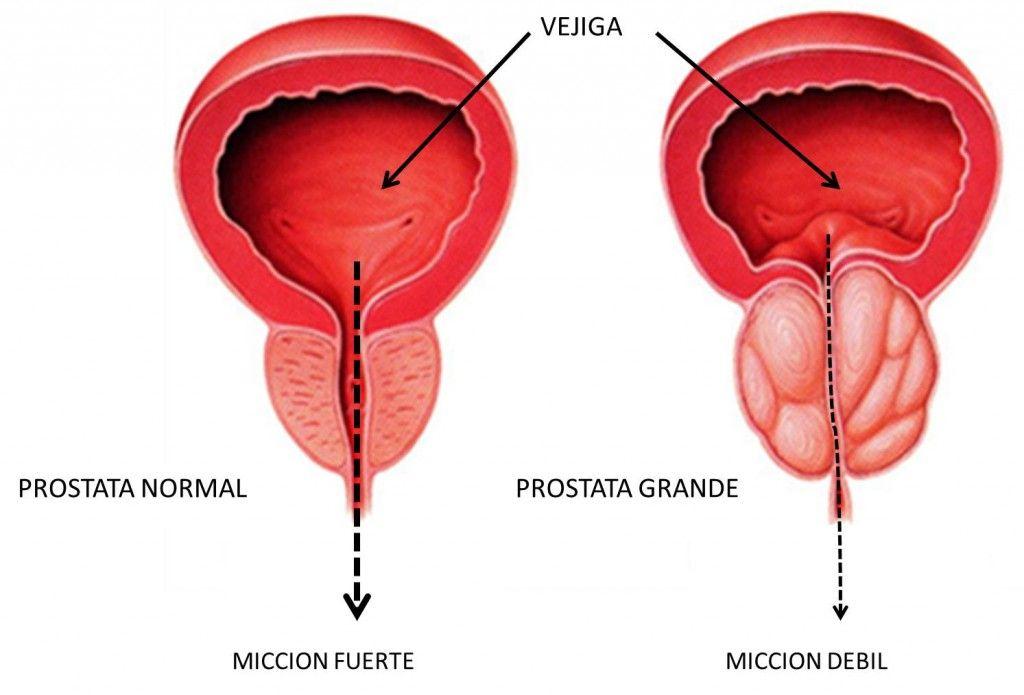 Famoso Próstata Masculina Ornamento - Imágenes de Anatomía Humana ...