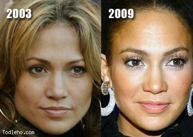 Jennifer Lopez Before And After Pictures Image Hosted By Todleho