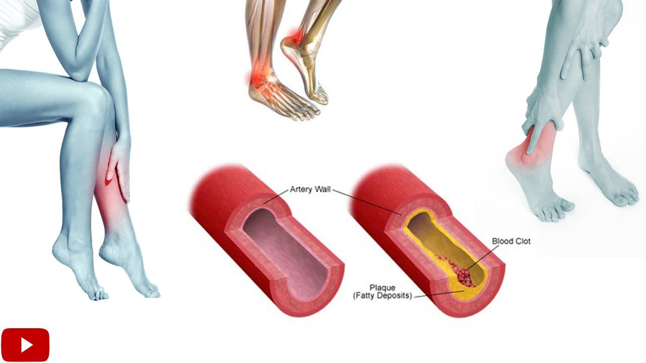 Exercises for improving blood circulation. Walking