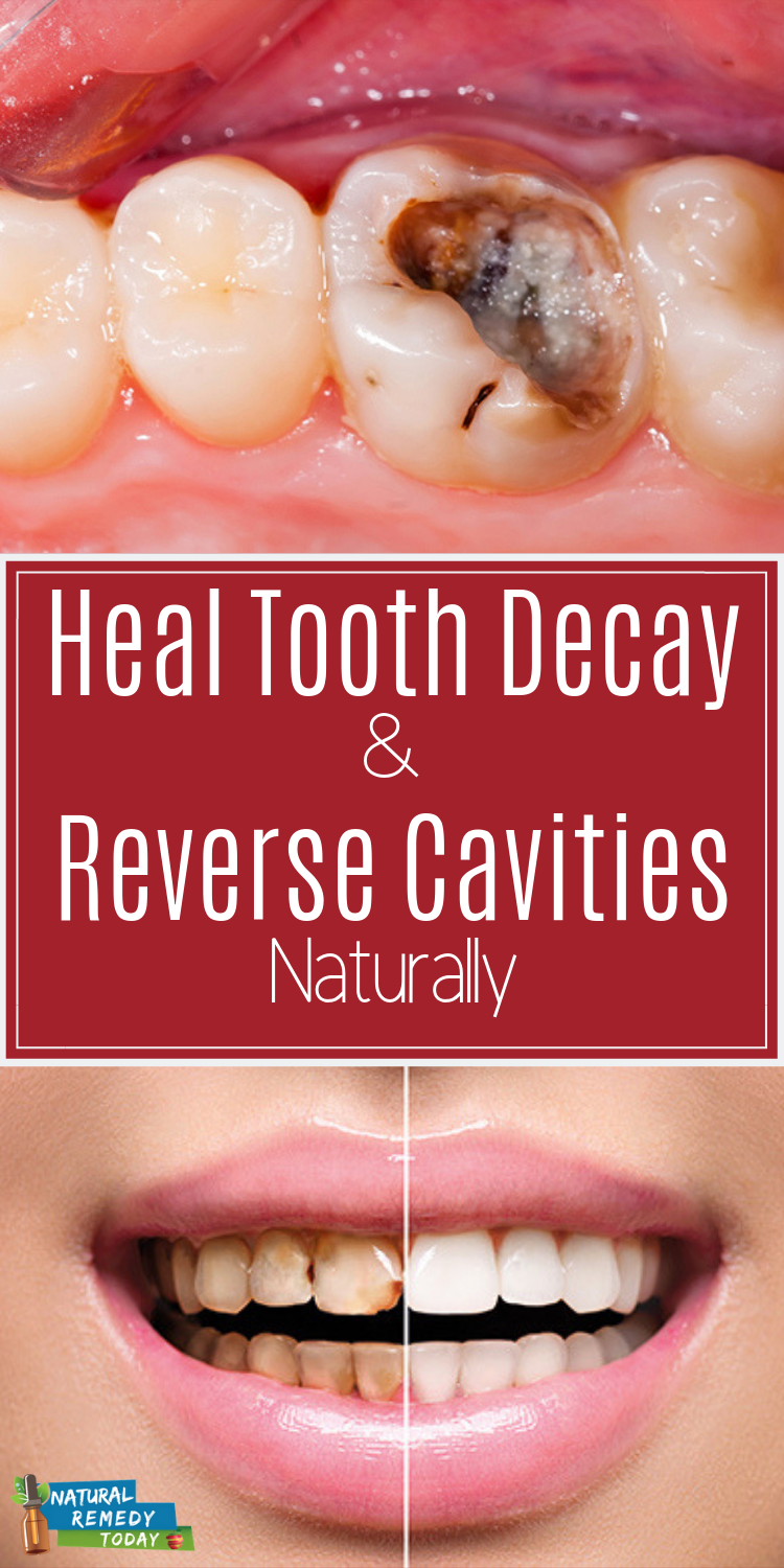 Reverse Tooth Decay Tooth Decay Tooth Decay Remedies Tooth Tooth Ache Relief Tooth Teeth Reverseto Tooth Decay Remedies Reverse Cavities Tooth Decay