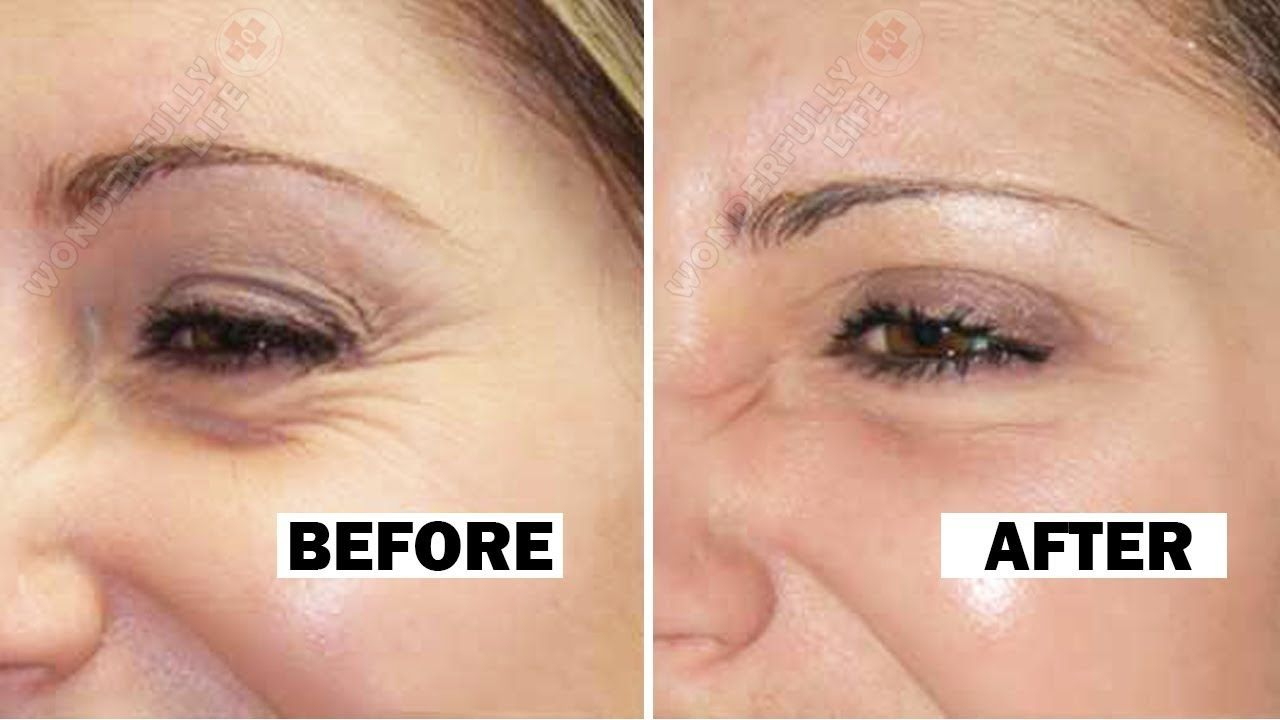 How to remove wrinkles under the eyes 45