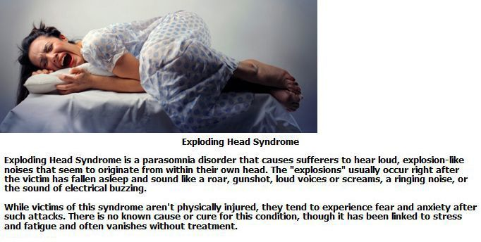 Exploding Head Syndrome Exploding Head Syndrome How To Fall Asleep Sleep Paralysis