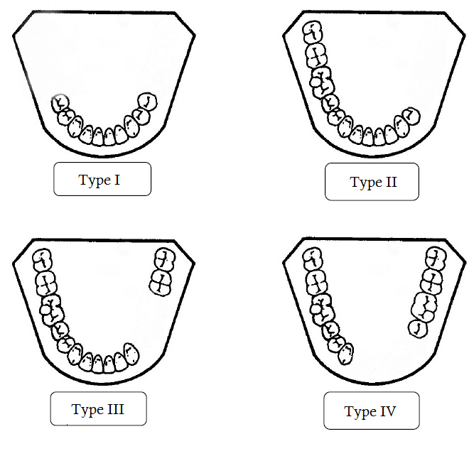 Kennedy classification for edentulous dentition