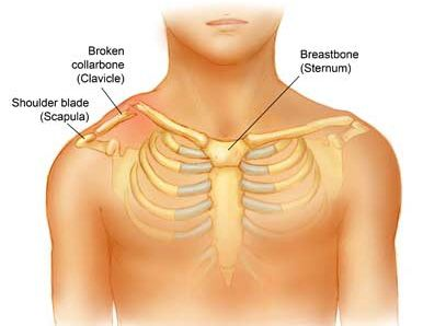 Broken collarbone fracture collar bone humerus my pins fractures of the shoulder usually involve a break in either the clavicle collar bone or the neck of humerus arm bone or both ccuart Image collections