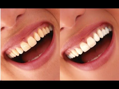 Como Clarear Os Dentes Em 2 Minutos Com Fermento Em Po Limpeza