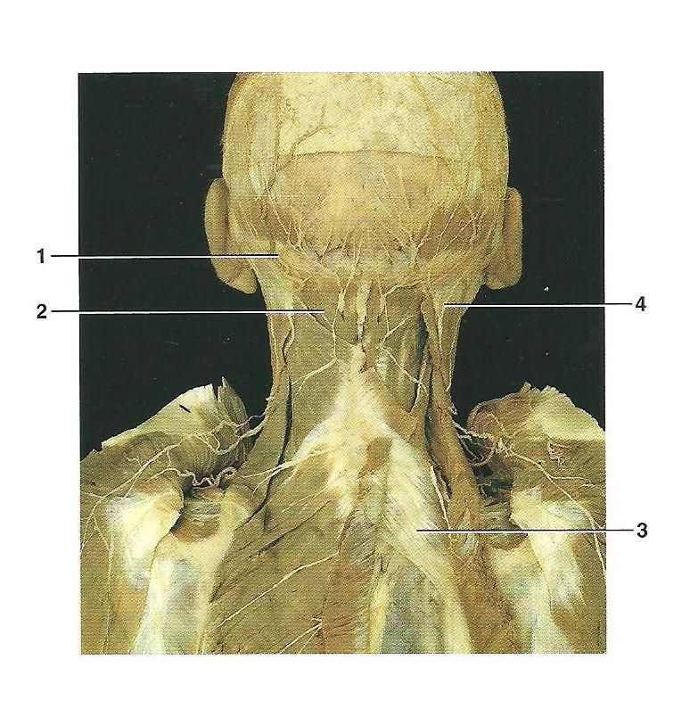 Back Quiz with cadaver | Back Pain Help | Pinterest