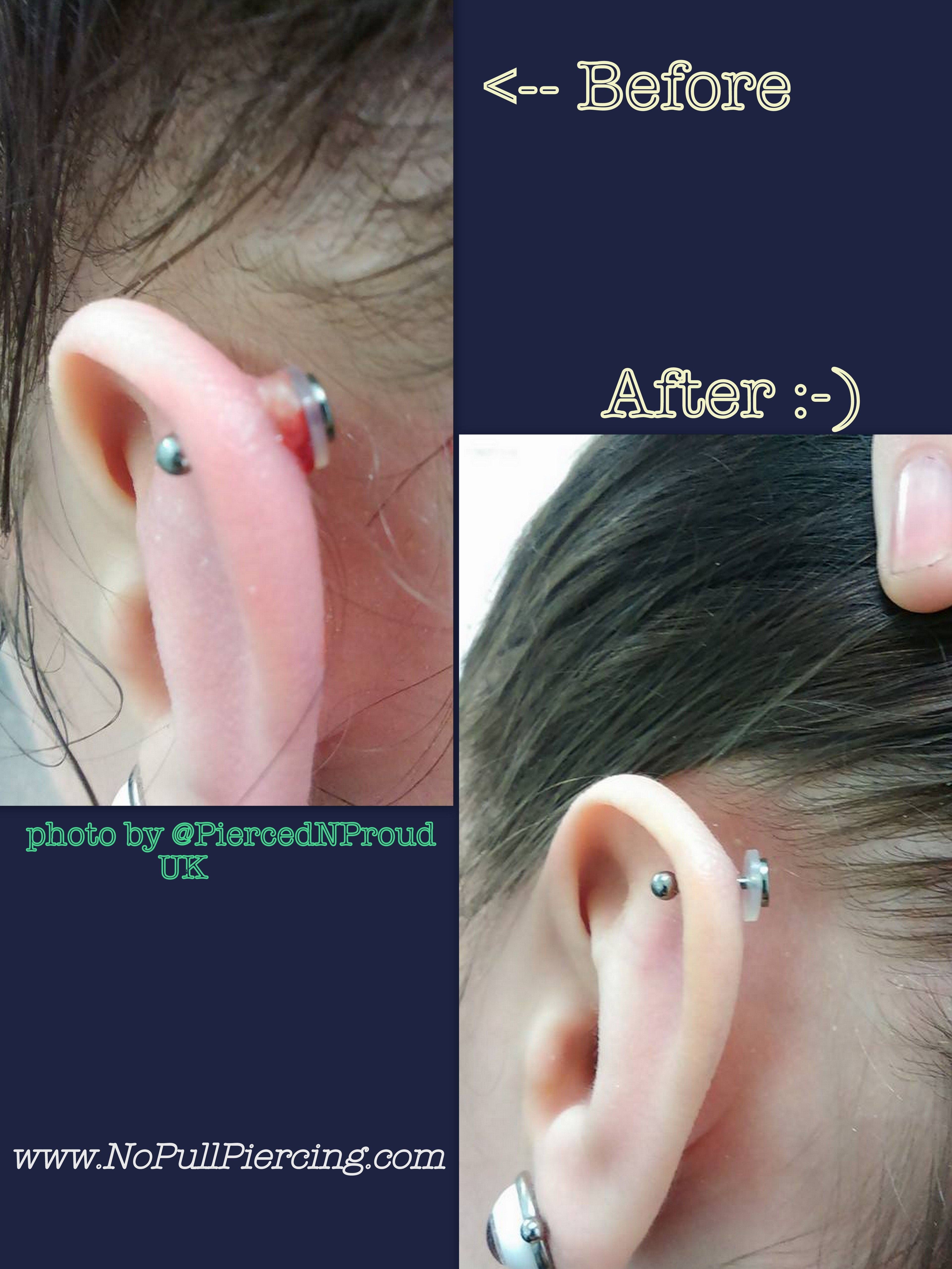 Our Customer Pierced N Proud In The Uk Sent Us This Amazing Result