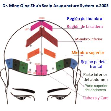 Acupuntura en el cuero cabelludo según el método del Dr. Zhu. Tlahui ...