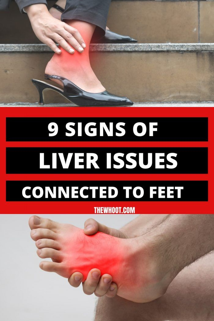 9 Signs Of Liver Problems Connected To Feet - The