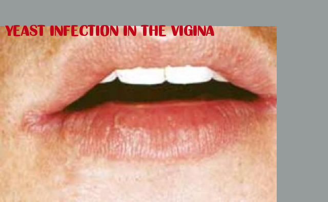 Yeast Infection In The Vigina Candida Albicans Pinterest Cure