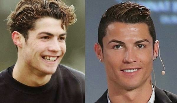 Cristiano Ronaldo Before and After – Morably   Getting ...
