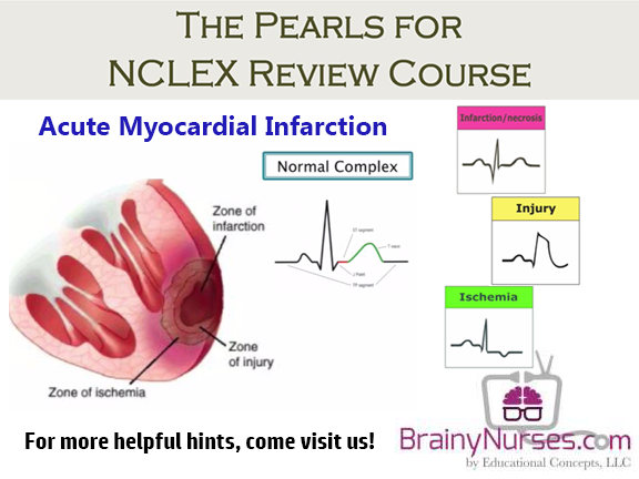 Acute Myocardial Infarction in Women | Circulation