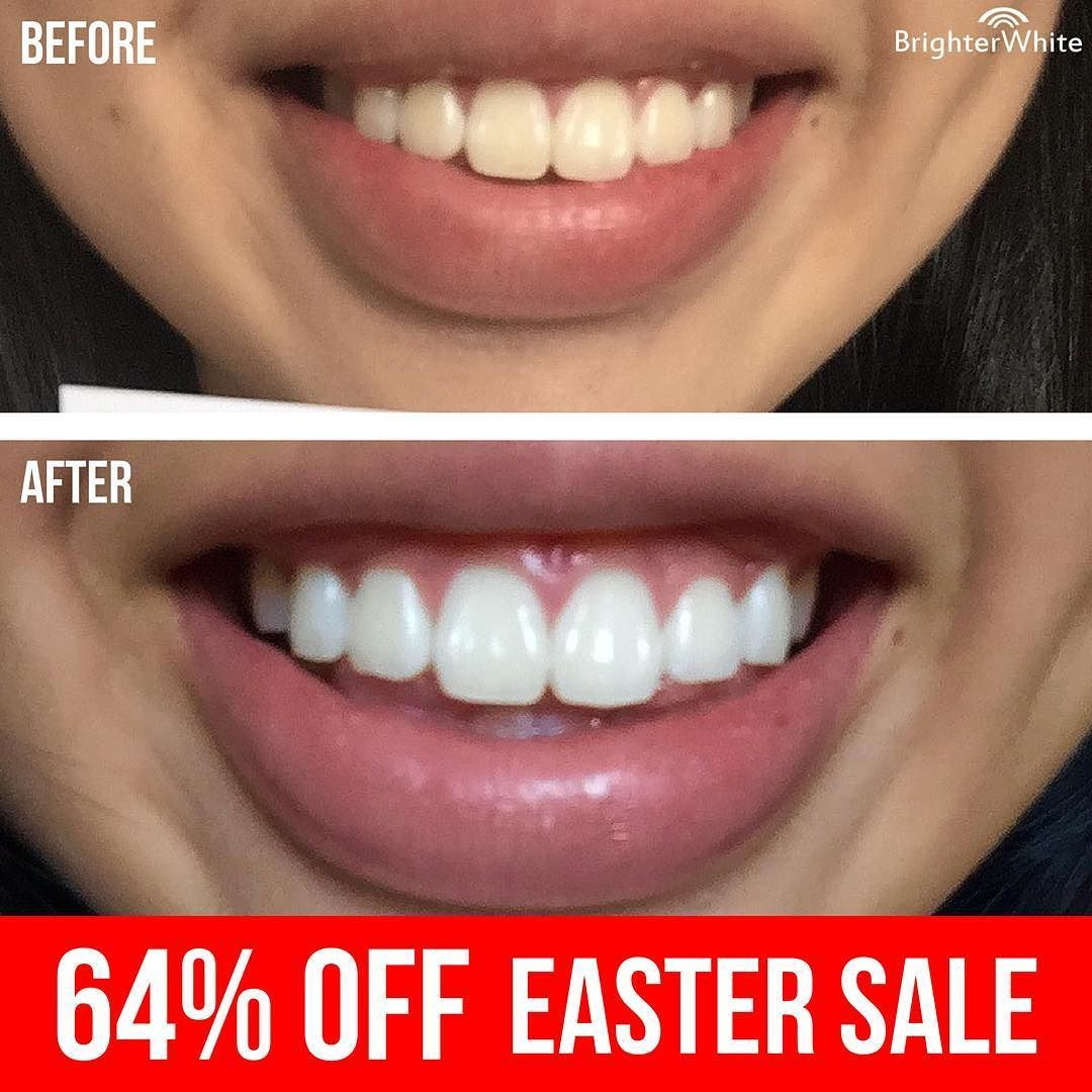 Colgate teeth whitening teeth whitening products pinterest teeth - Save Up To 64 Off Popular Brighterwhite Teeth Whitening Kits With