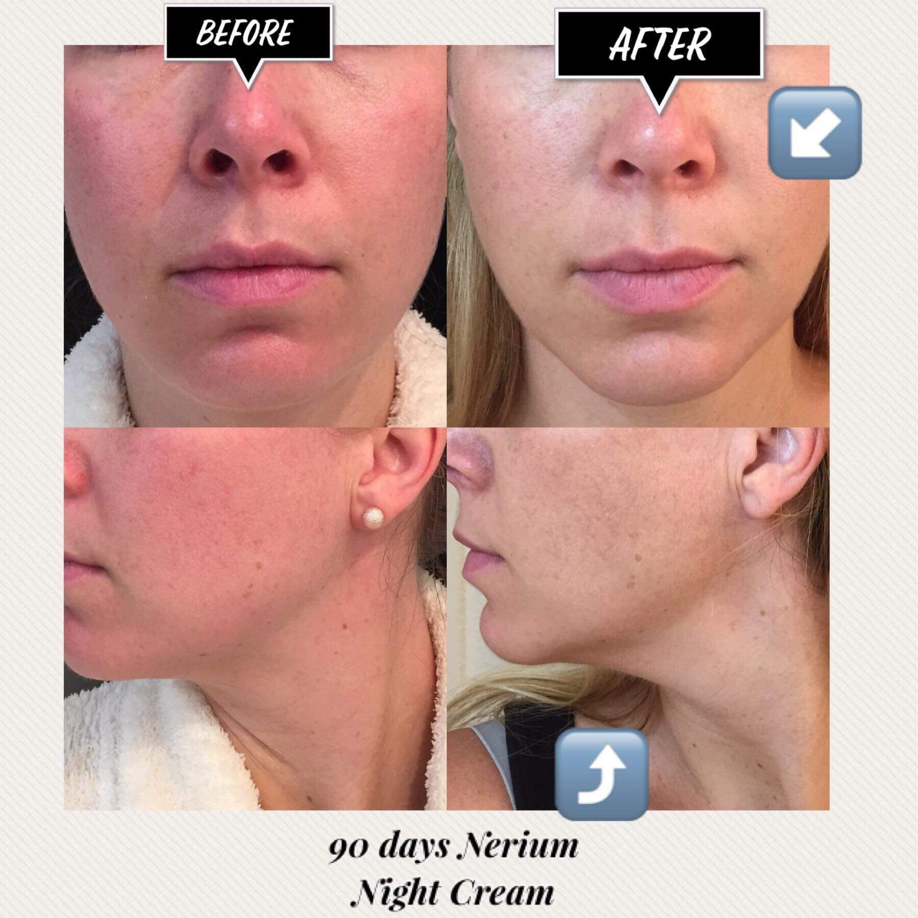 Take The Red Out Of Your Skin Uneven Tone Blotchy Appearance Uneven Texture Time To Give Nerium A 90 Day Trial Nerium Night Cream Night Creams Skin Care