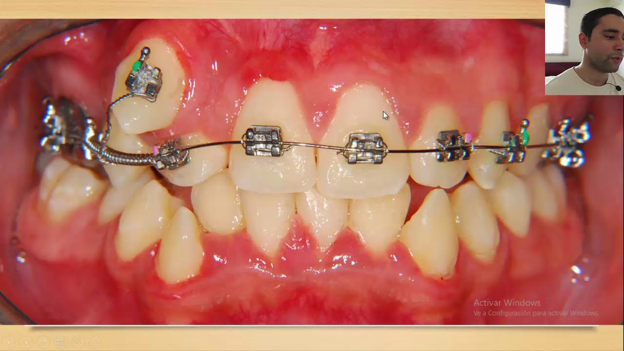 Hablemos De Ortodoncia Caso Clinico 11 No Te Lo Pierdas Youtube Orthodontics Braces Orthodontics Dental Care