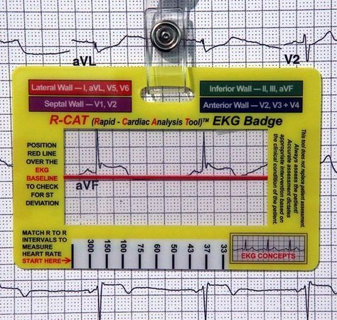 Rapid - Cardiac Analysis Tool (R-CAT)  EKG Concepts More medical
