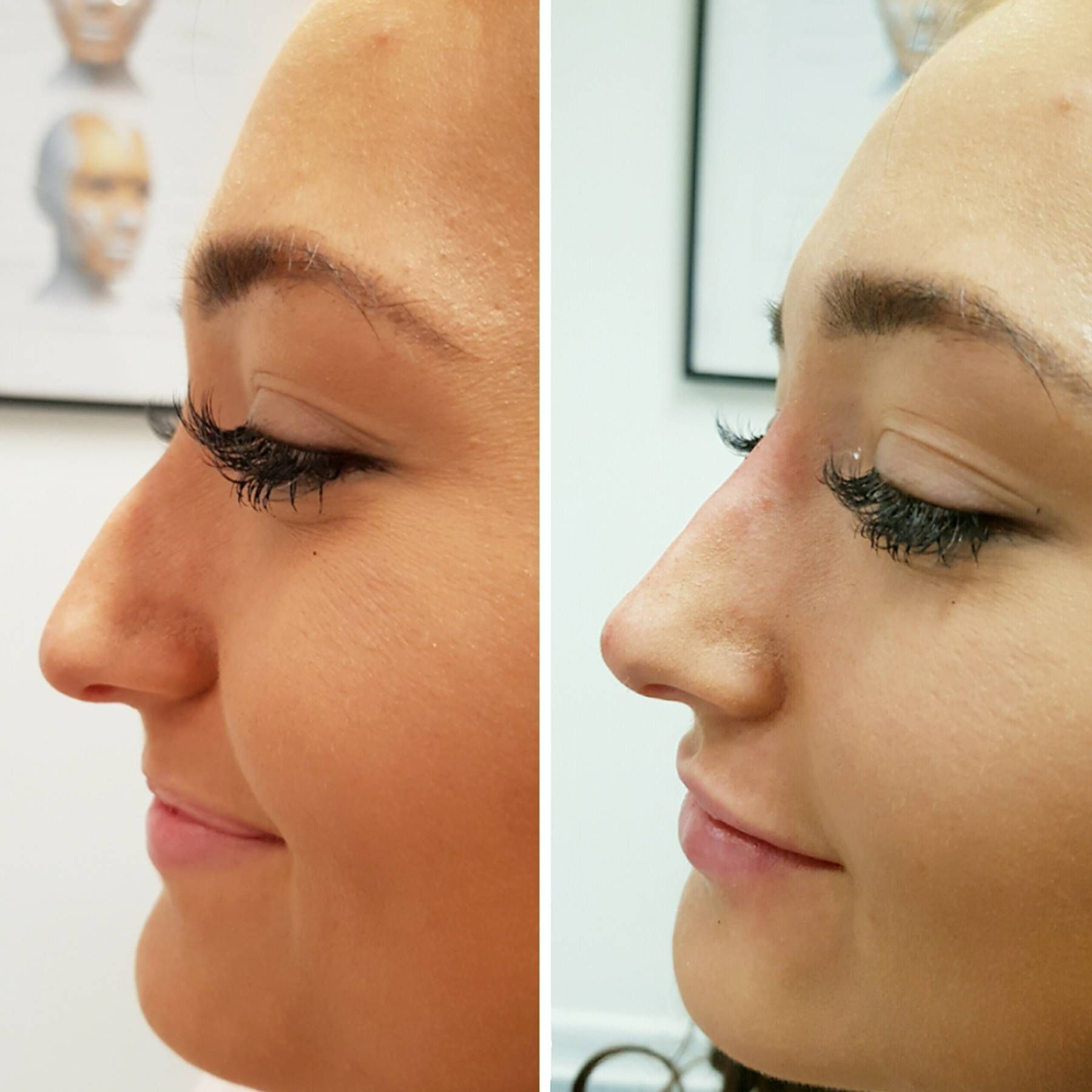 I tried a nonsurgical nose job and this is what happened