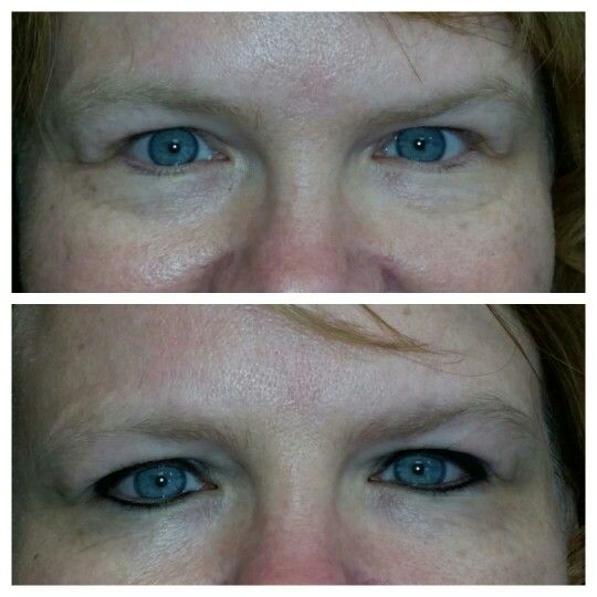 Before and after top and bottom eyeliner permanent makeup for Tattoo eyeliner bottom lid