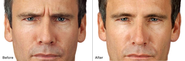 Botox quickly, safely and effectively erase deep, unwanted