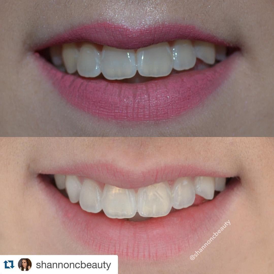Pin on Smile Sciences Teeth Whitening