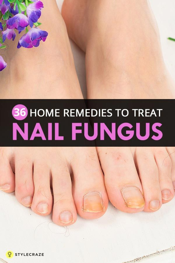 Top 36 Home Remedies To Treat Nail Fungus | Pinterest | Remedies ...