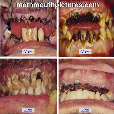 Image result for methamphetamine mouth