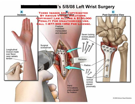 wrist fracture surgery | Ventral incision on wrist with