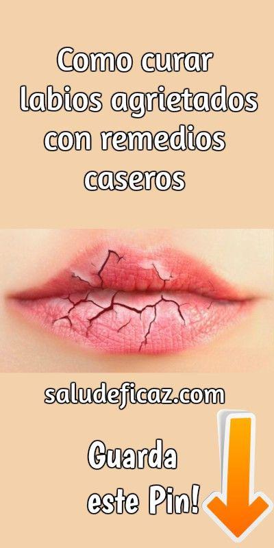 como curar labios resecos