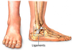 What Is A High Ankle Sprain And How To Fix It Footanklealliance Blog
