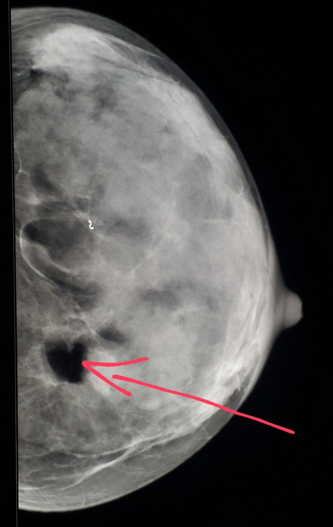 breast mammogram shows a benign fatty mass lipoma surrounded