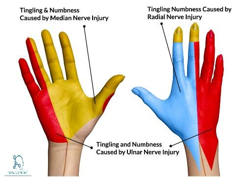 Radial Nerve:Course,Motor,Sensory & Common Injuries | Carpal tunnel ...