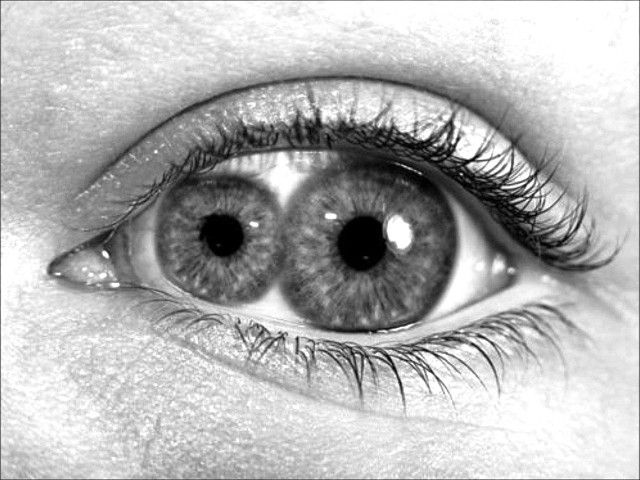 Resultado de imagem para two pupils in one eye