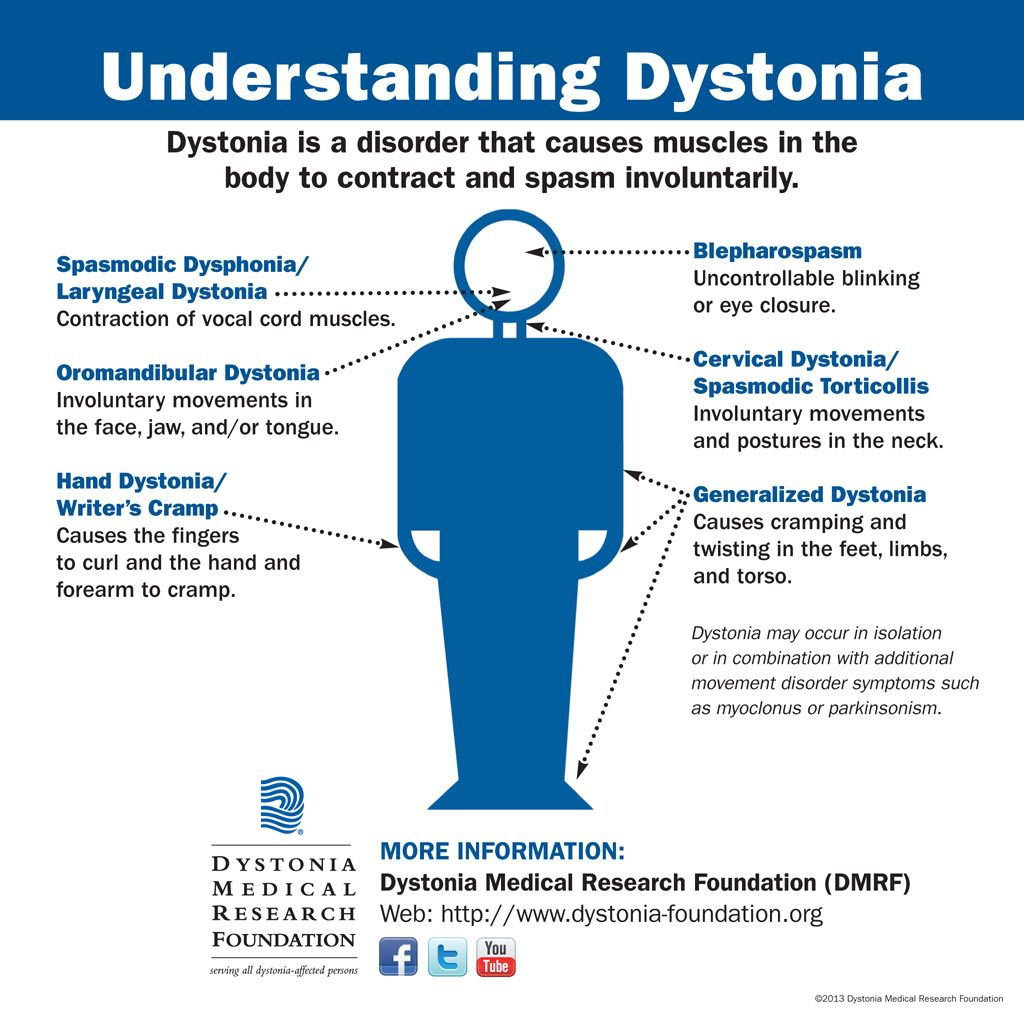Understanding Dystonia Infographic chart explaining