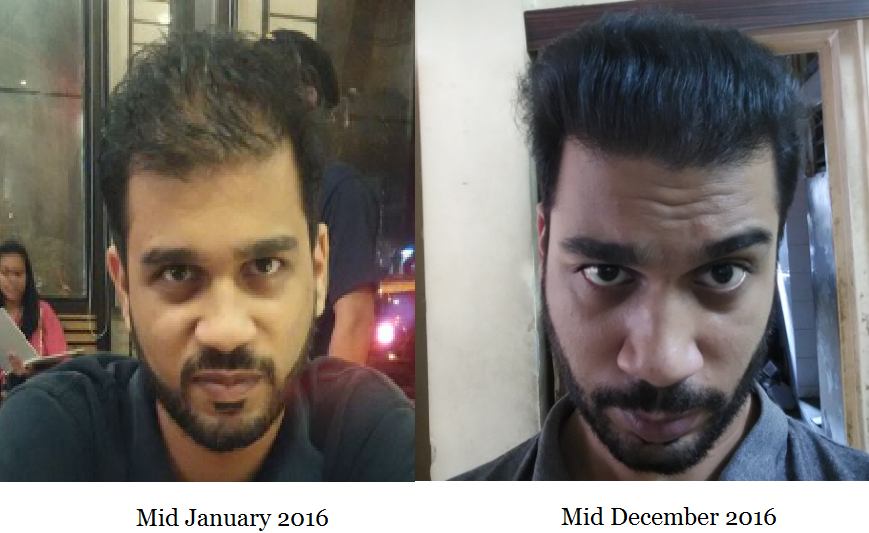 How I Started Reversing Male Pattern Baldness Naturally