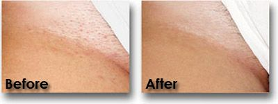 Before And After Bikini Line Bikini Hair Removal Bikini Line