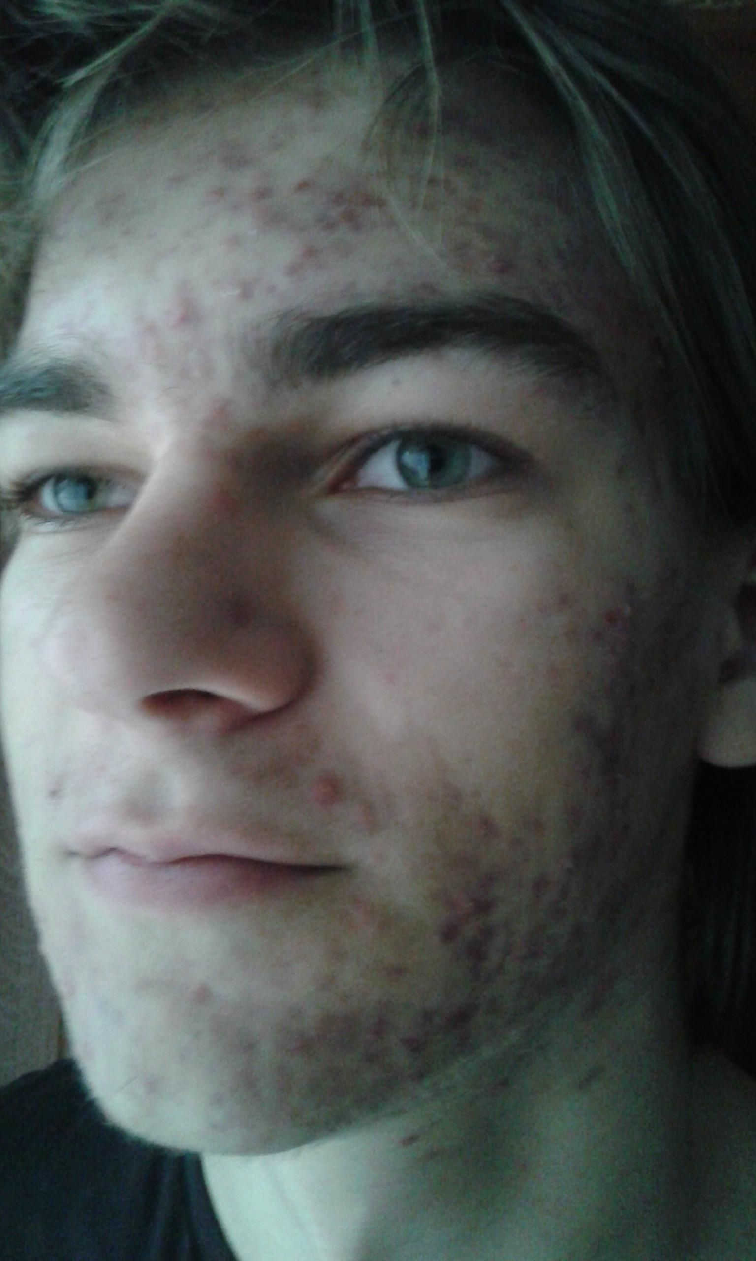 [Acne] I used to have problem with acne.