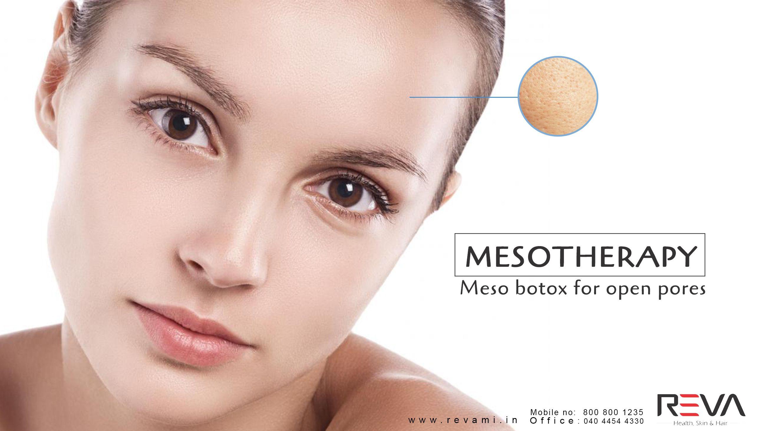 Mesotherapy Meso botox for open pores more info> http
