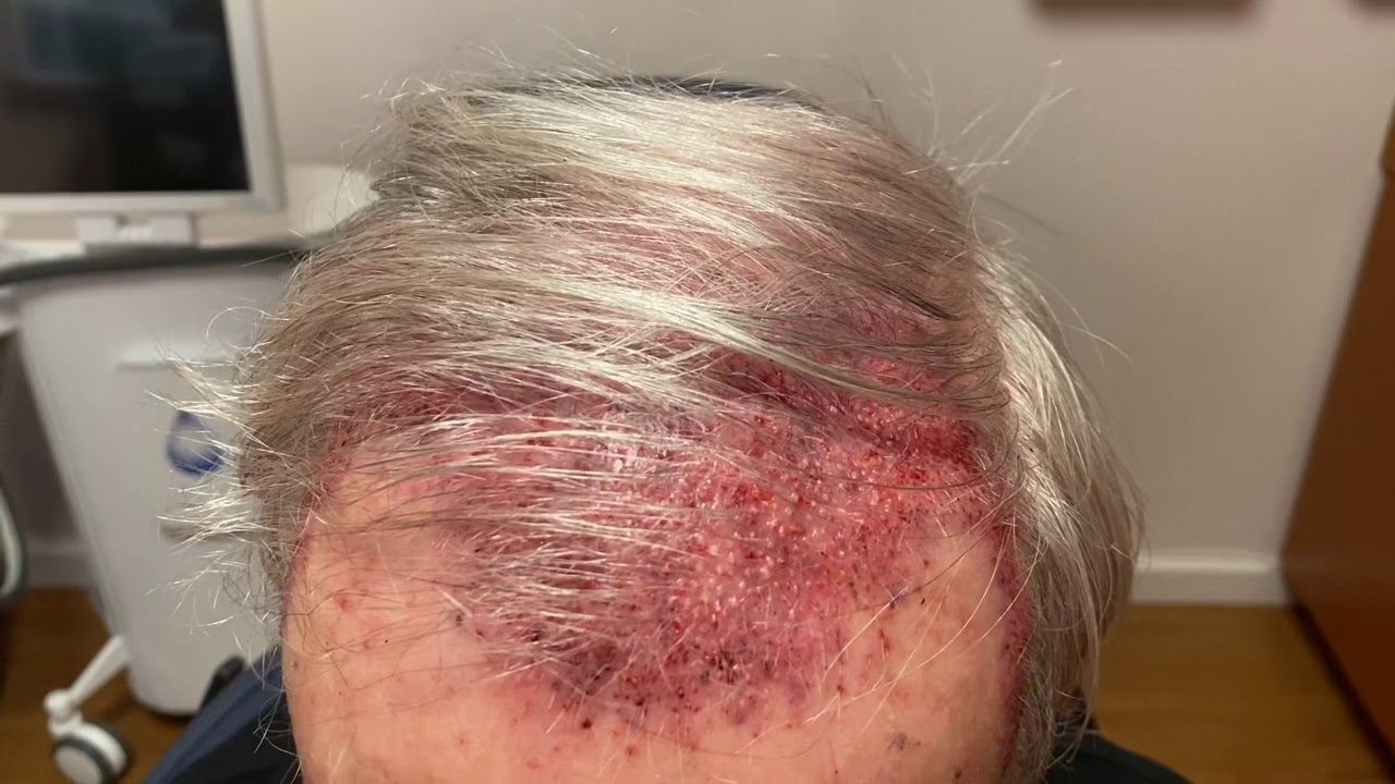Dallas Hair Transplant Recovery Testimonial Dallas hair
