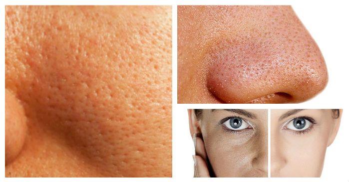 poros abiertos piel de naranja en la cara