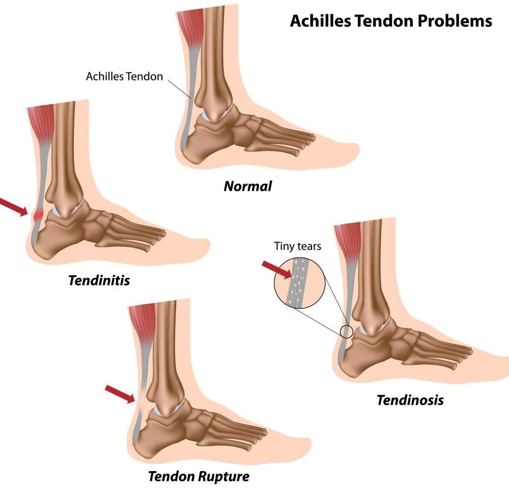 achilles tendinitis difference