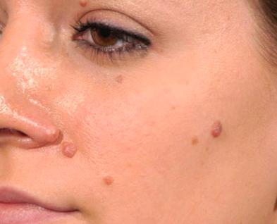 Tahi lalat pada wajah memberikan ciri khas pada. Tapi kalau sudah banyak mengganggu penampilan dan harus diangkat. Bagaimana caranya ?