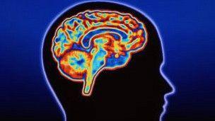 Escáner cerebral que identifica el tipo de demencia