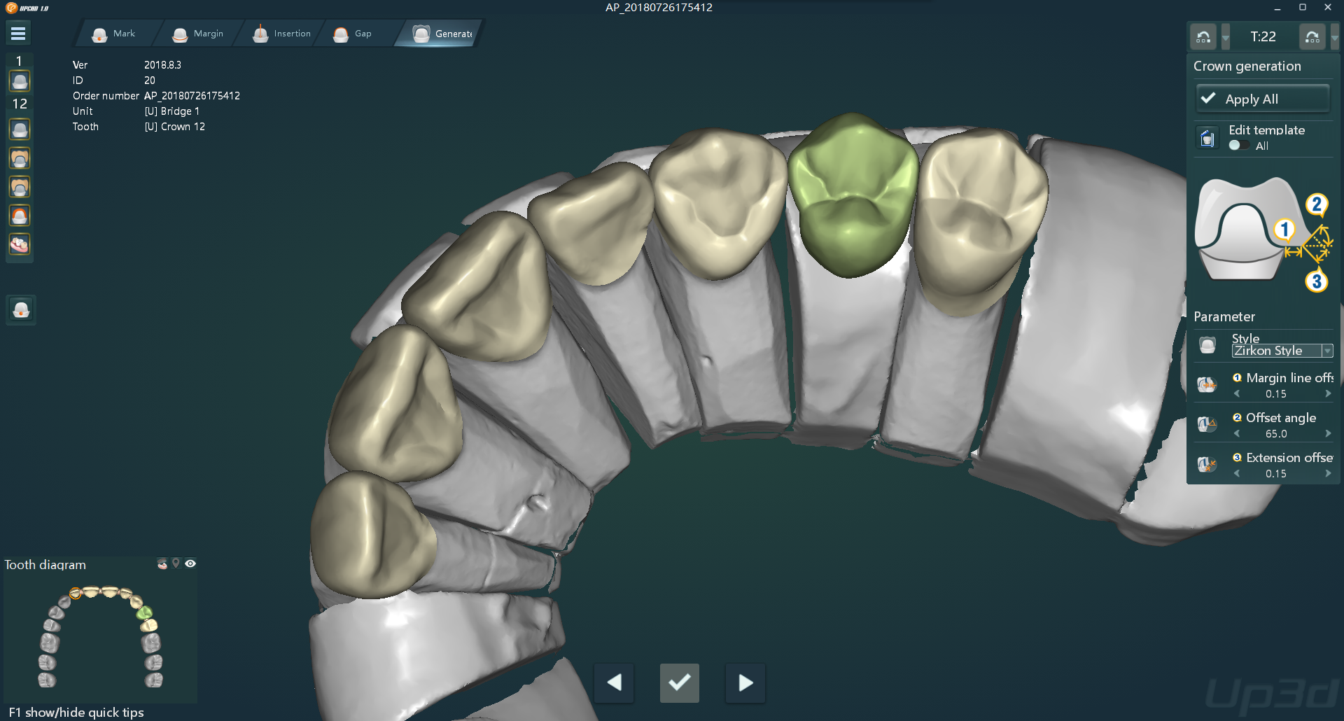 UPCAD-dental design software for crown and bridge version