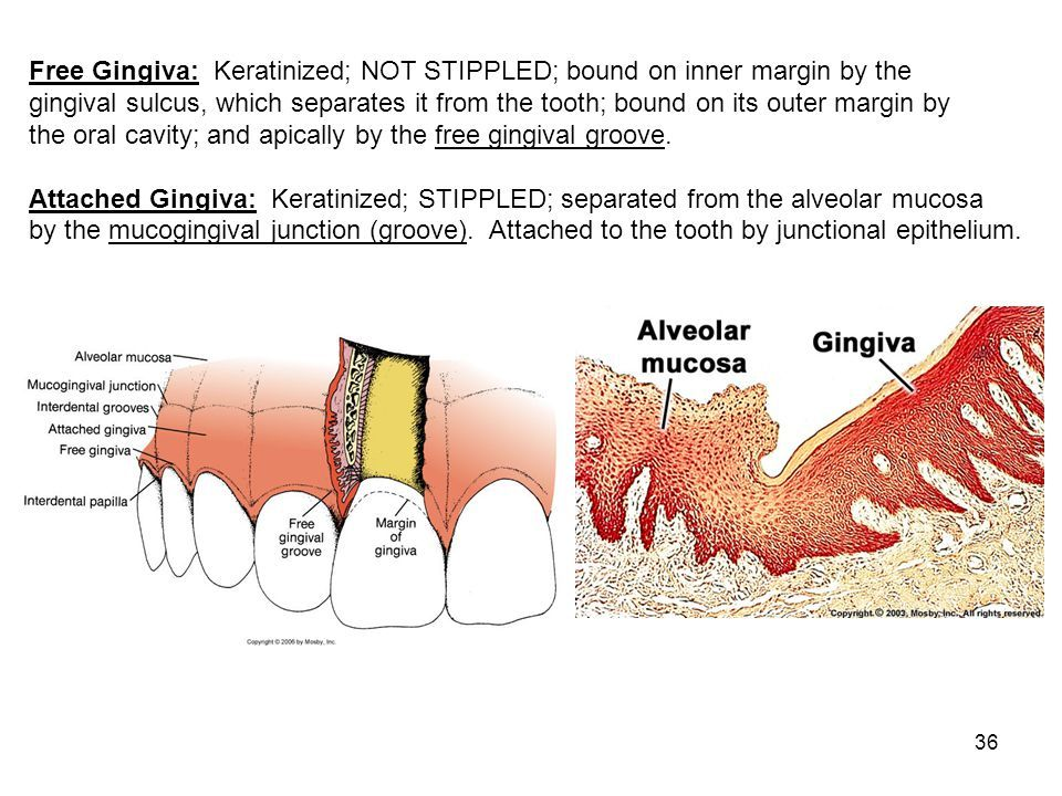 Image result for gingival mucosa Dental, Oral cavity
