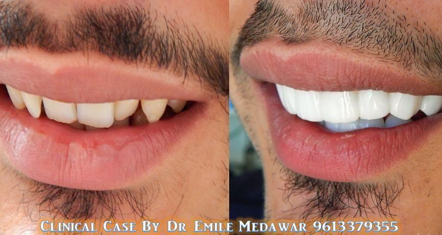 My Teeth Transformation l Veneers Experience - YouTube