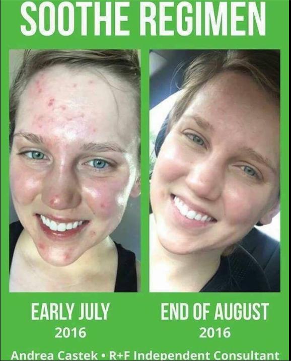soothe regimen  awesome for sensitive skin  s