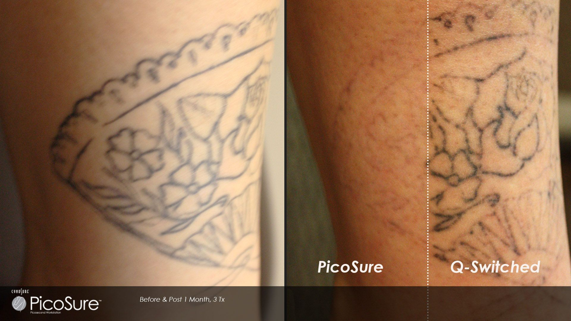 Call Carolina Laser Cosmetic Center In Winston Salem Nc To Undo Your Tattoo With Picosure Laser Tattoo Removal