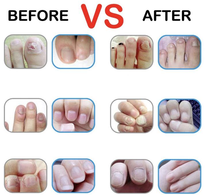 Advanced Fungal Nail Repair Pen Medifitstore Nail Fungus Nail Fungus Treatment Beauty Hacks That Actually Work