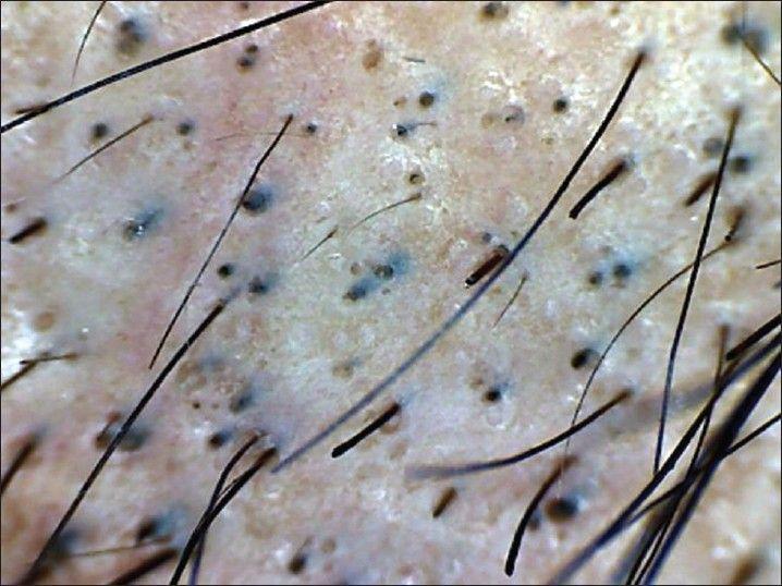 Black Dot Alopecia Dermatophytes Cause Hair Breakage